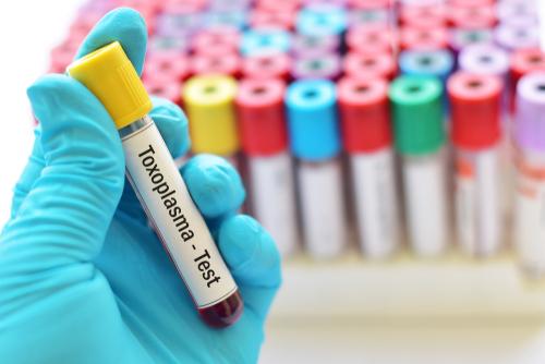 toxoplasmose-nitrites-ennemi-grossesse